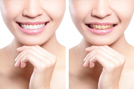 tooth cleaning: woman teeth before and after whitening. asian beauty model