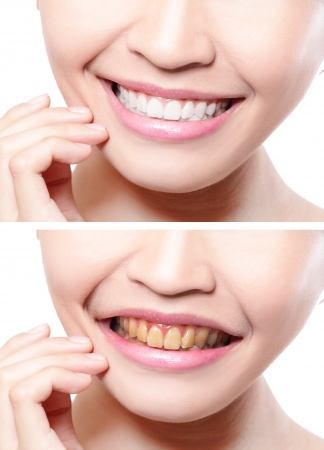 before after: woman teeth before and after whitening. asian beauty model