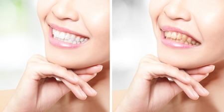 teeth cleaning: woman teeth before and after whitening. asian beauty model