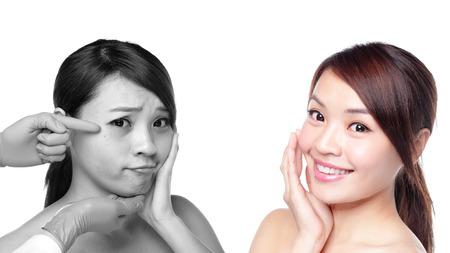 asia smile: Mujer Cuidado de la piel antes y despu�s - retrato de la mujer con belleza facial y la piel perfecta aisladas sobre fondo blanco, asi�tico