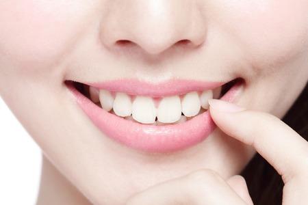 or blanc: Belles jeunes dents de la santé de la femme se referment et charmant sourire. Isolé sur blanc asiatique beauté Banque d'images