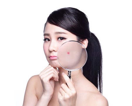 woman close up: Face Skin Problem - young woman with a acne and magnifying glass check it isolated Stock Photo