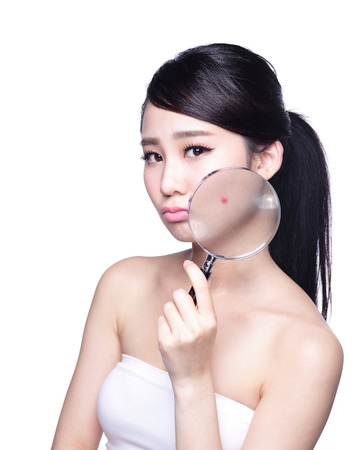 asia: Face Skin Problem - young woman with a acne and magnifying glass check it