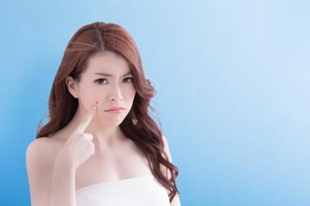 mujer joven infeliz toque su piel con el fondo azul aislado, asiático Foto de archivo