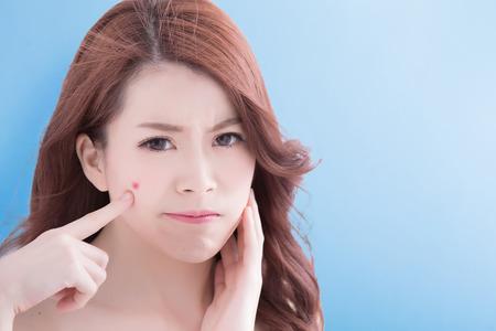젊은 여성 아시아 불행 터치 고립 된 파란색 배경으로 그녀의 피부, 스톡 콘텐츠