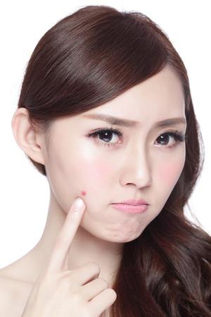 얼굴 피부 문제 - 불행 터치는 그녀의 피부 격리 된 젊은 여성, 피부 관리에 대한 개념, 아시아