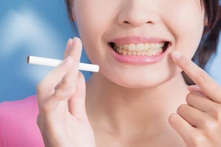 dientes: Mujer que sostiene cigarrillos con dientes amarillos aislados en el fondo azul, asiático Foto de archivo