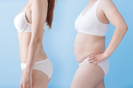 after: fat overweight woman and slim woman isolated on blue background, asian Stock Photo