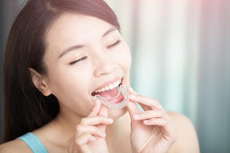 dientes sucios: belleza mujer de la sonrisa feliz con aparatos invisibles Foto de archivo