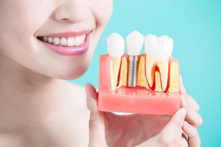 여자는 녹색 배경에 치아 임플란트 틀니 걸릴
