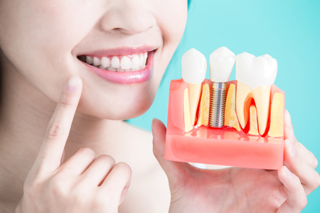 Vrouw nemen tand implantaat valse tand op groene achtergrond
