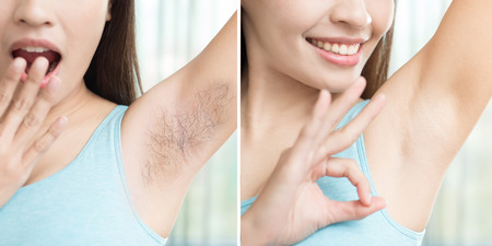 asia beauty woman with armpit plucking problem before and after