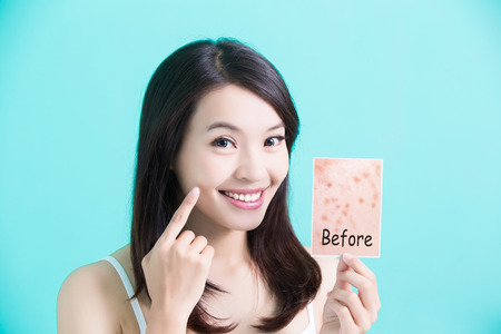 beauty skincare woman take picture and point her face before and after Stock Photo