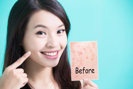beauty skincare woman take picture and point her face before and after 版權商用圖片