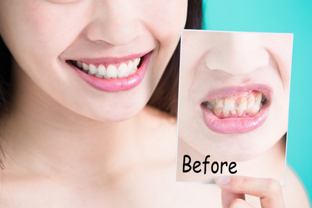 beauty skincare woman take tooth picture before and after on green background Stock fotó - 80029668