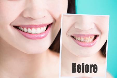 schoonheid huidverzorging vrouw neemt tand foto vóór en na op groene achtergrond Stockfoto