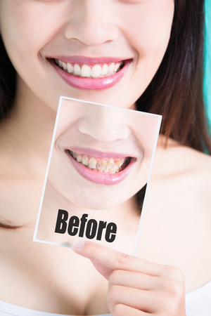 beauty skincare woman take picture with tooth whiten 版權商用圖片