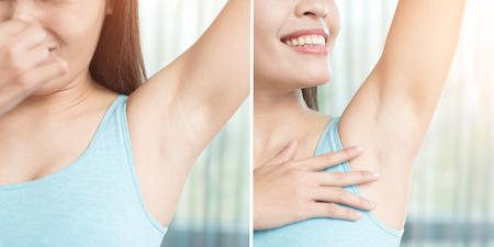 전후의 체취 문제가있는 미용 여성 스톡 콘텐츠