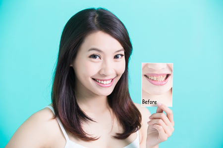 beauty skincare woman take tooth picture before and after on green background