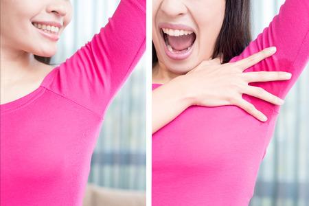 Asia mujer de belleza con el problema del olor corporal antes y después