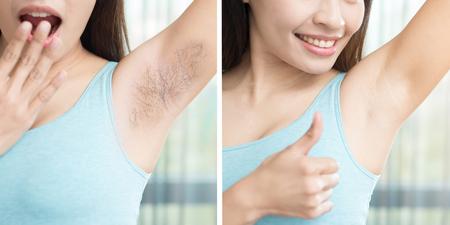 Asia mujer de belleza con la axila arrancar el problema antes y después Foto de archivo