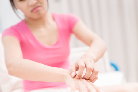 woman with itchy skin problem on tge hand in room Stock Photo