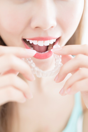 woman take invisible braces  and smile at home Stok Fotoğraf