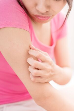 woman with itchy skin problem on the arm in room Stock Photo