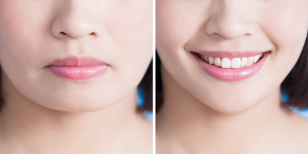 close up of surgery woman with tip chin before and after on the blue background