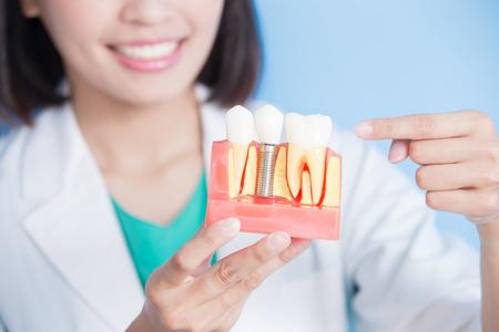 Frau Zahnarzt nehmen Implantat Zahn auf dem blauen Hintergrund Standard-Bild - 87407505