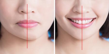 수술 여자 비대칭 턱 전후 파란색 배경에 닫습니다