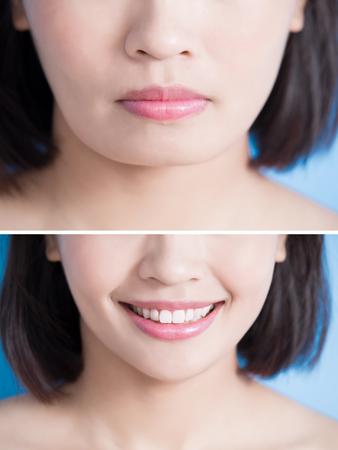 青の背景にヒントあごの前後に手術女性のクローズ アップ