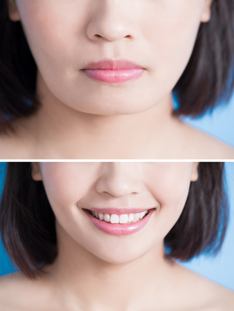 close up of surgery woman with tip chin before and after on the blue background Imagens - 87484500