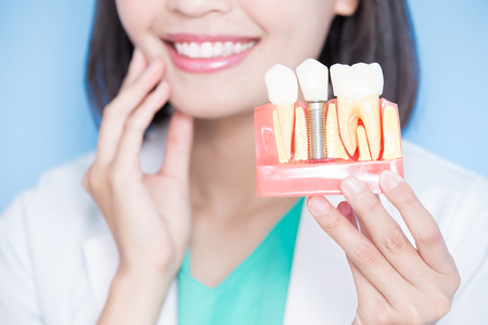 女性歯科医が青の背景にインプラント歯と歯の接触を取る