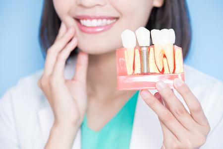 dentista donna prende dente di impianto e dente tocco sullo sfondo blu Archivio Fotografico