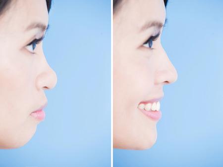여자 턱과 파란색 배경에 코를 닫습니다.