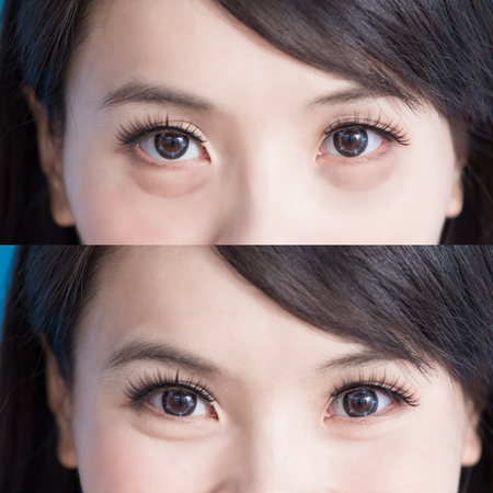 woman eye bags vefore and after on the blue background