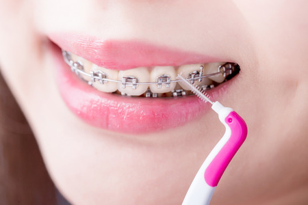 close up of woman wear brace and take interdental brush