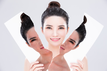 woman look you with beauty skin care concept before and after on the gray background 스톡 콘텐츠