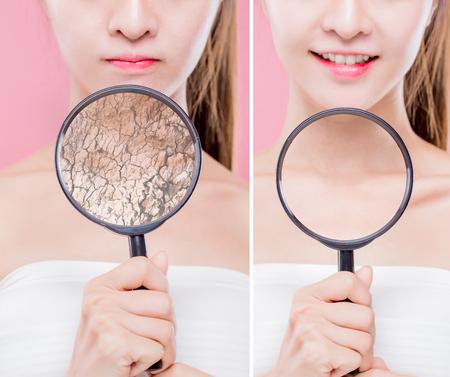 vrouw neemt vergrootglas op nek met droge huid - hydraterend zorgconcept Stockfoto