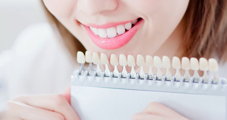close up of beauty woman smile to you with health teeth and color samples tool for bleaching treatment 免版税图像