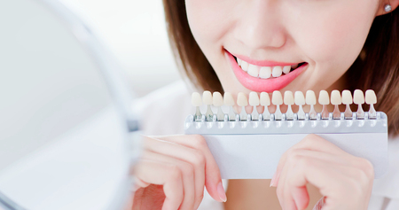 close up of beauty woman smile to you with health teeth and color samples tool for bleaching treatment Stock Photo