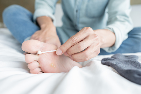 man applying cream for athletes foot treatment by cotton swab 免版税图像