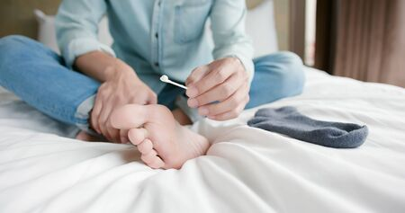 man applying cream for athletes foot treatment by cotton swab