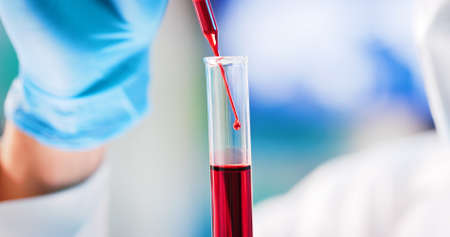 microbiologist or medical worker use test tube filling with blood in the laboratory