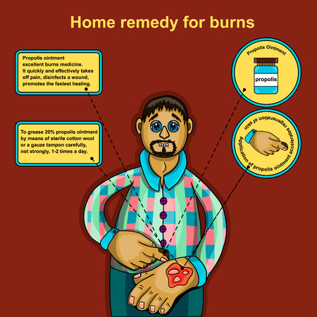 aching: The information poster describing first aid at a slight burn of a surface of skin. Alternative medicine. Apiotherapy. Beekeeping. Knowledge of ancestors.