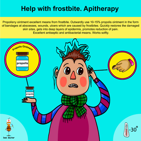 Information poster about first aid for frostbite using apitherapy. The poster provides information on the beneficial properties of propolis ointment in mild frostbite. Alternative medicine.