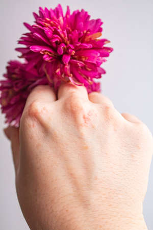 Womens hand close-up with rash of papillomas due to virus with pink flowers