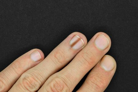 Top view of male hand with brown line on one of the finger nail better known as melanonychia (nail pigmentation) on black and matte background surface