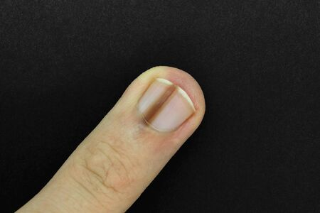 Top view of brown line on male's nail finger better known as melanonychia (nail pigmentation) on black and matte background surface 写真素材